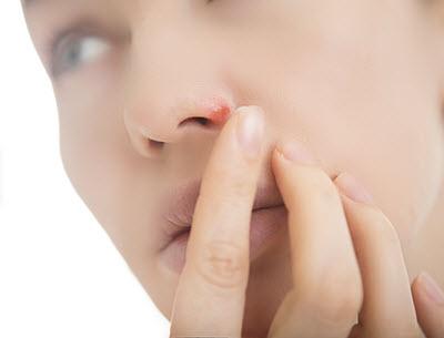 Nasenherpes - Herpes in der Nase