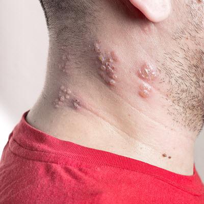 Die G 252 Rtelrose Herpes Zoster Was Tun Gegen Herpes