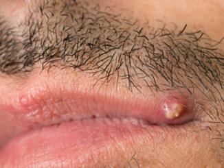 Bartpflege ist bei Lippenherpes kompliziert