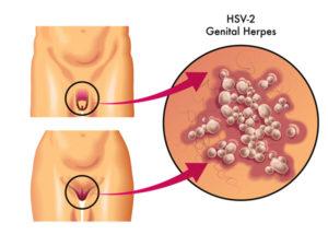 Genitalherpes wird durch Sex übertragen
