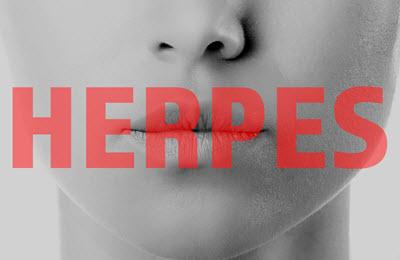 Herpes vorbeugen Lippenherpes richtige Mittel Hausmittel und Cremes gegen Herpesbläschen