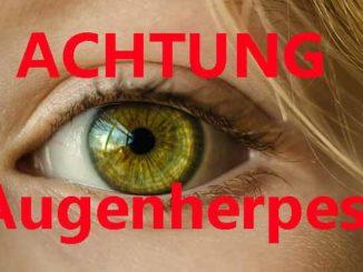 Augenherpes Verwechslung mit harmlosen Augenkrankheiten möglich Info von Dr. Nagy